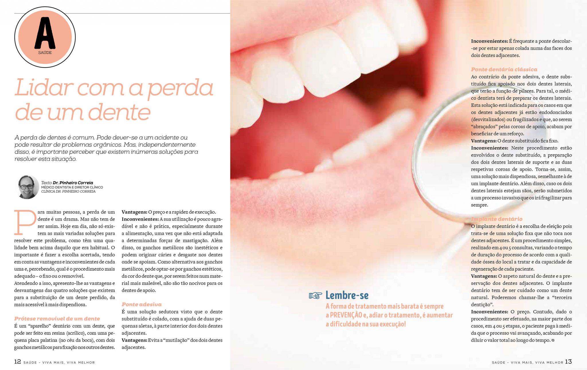 Lidar com a perda de um dente