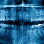Para quem servem os dentes do siso?